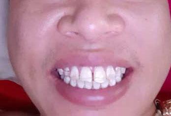 Dán răng sứ thẩm mỹ