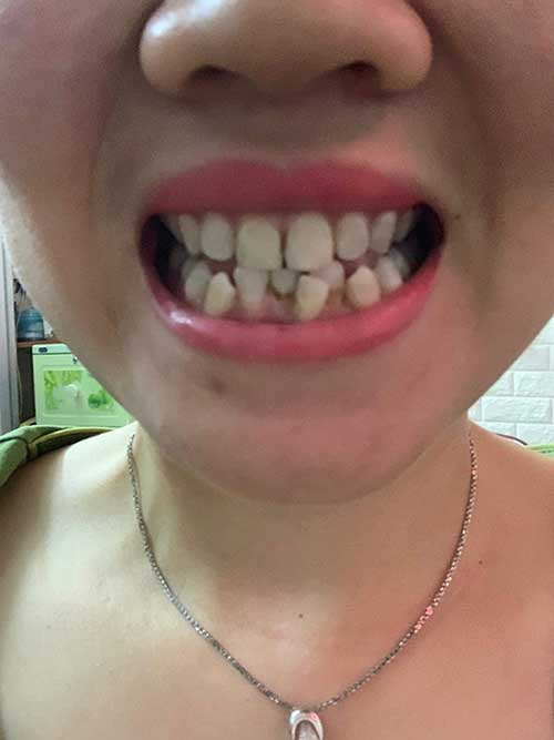 Bọc răng sứ ở Nha khoa Sunshine có uy tín không