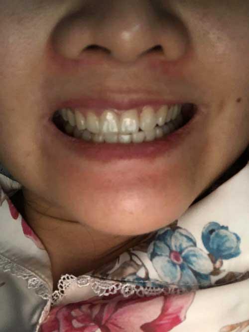 Bọc răng sứ được bao nhiêu năm