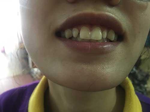 Bọc răng sứ ở đâu tốt tphcm