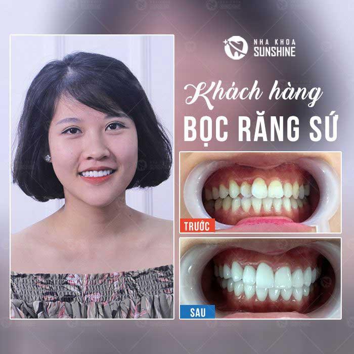 Bọc răng sứ giảm giá