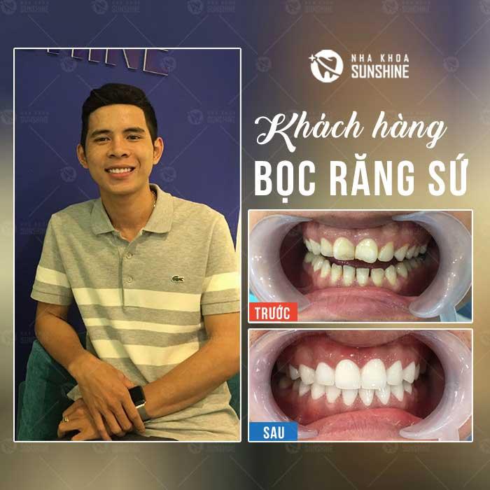 răng sứ kim loại ceramco