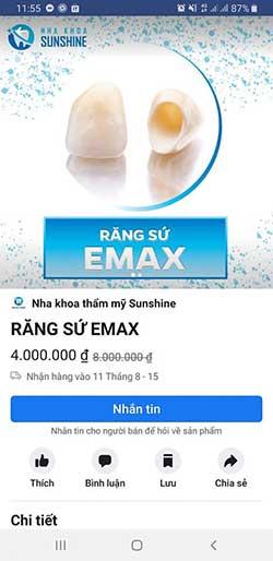 giá răng dán sứ