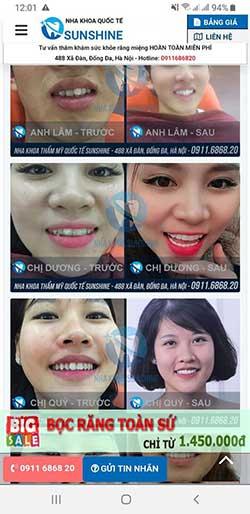 răng sư ceramill là gì