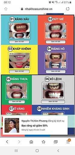 Bọc răng sứ cả hàm gái bao nhiêu