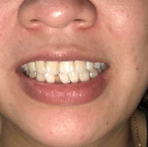 Dán răng sứ có bền không