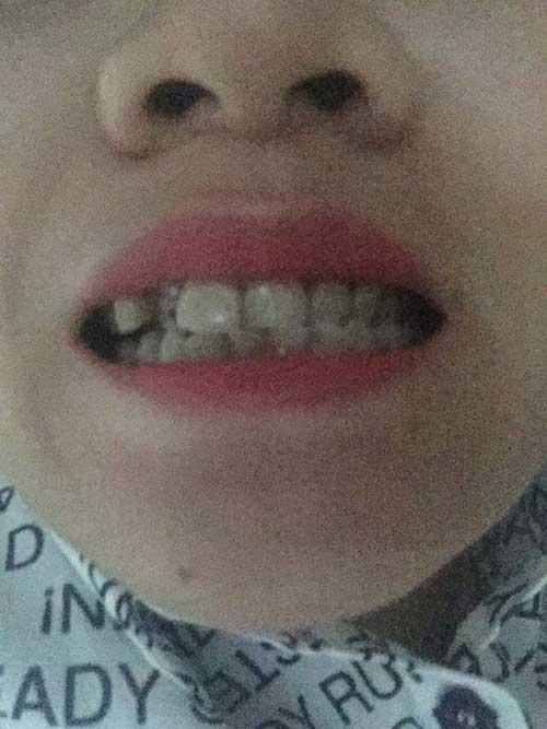 Bọc răng sứ không kim loại giá bao nhiêu