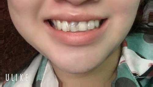 Bọc răng sứ cho răng bị sâu