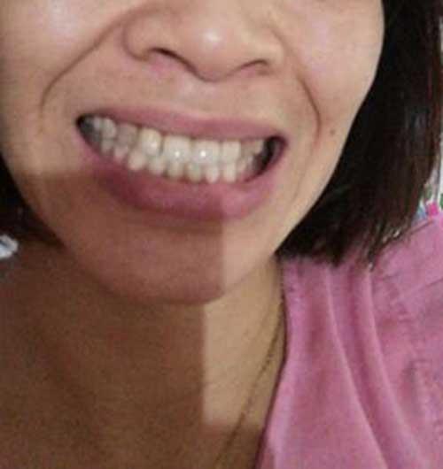 Bọc răng sứ có kiêng gì không