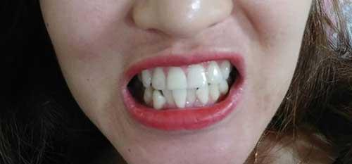 Răng sứ không kim loại là gì
