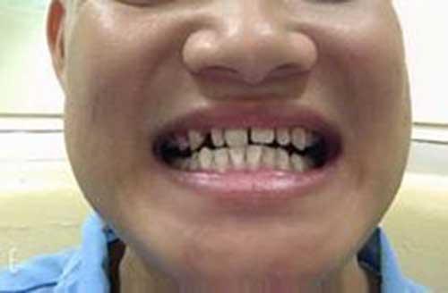 Bọc răng sứ bị thưa