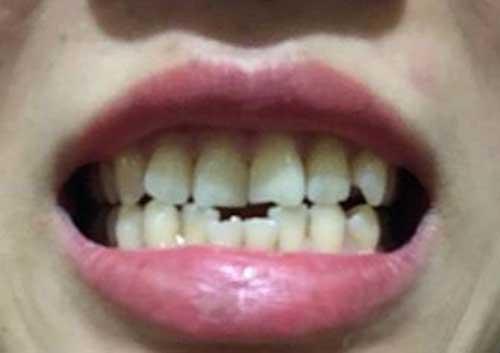 Bọc răng sứ bị vỡ