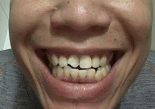 Bọc răng sứ kim loại được bao lâu
