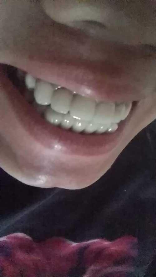 Bọc răng sứ bị đau nướu