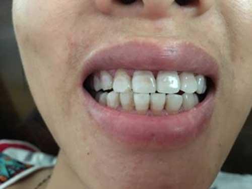 Bọc răng sứ có bị rớt ra không