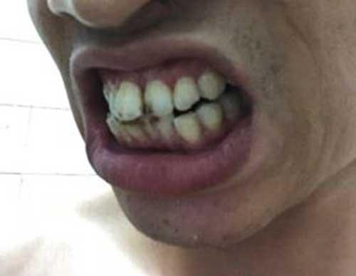 Bọc răng sứ cho răng cửa giá bao nhiêu