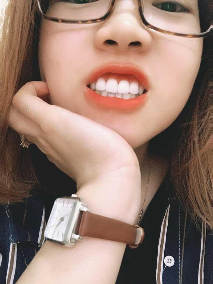 bọc răng sứ ở Gò Vấp