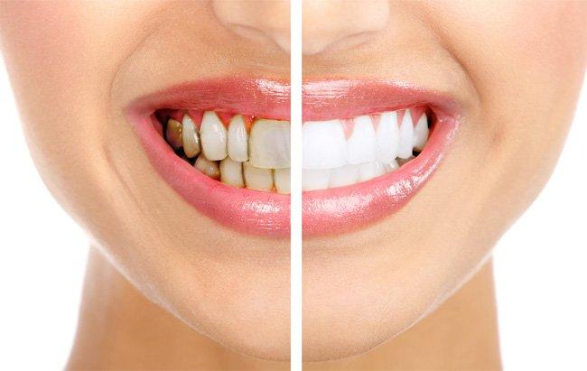 bản chất của phương pháp tẩy trắng răng là gì