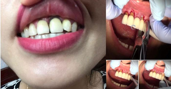bọc răng sứ bị viêm lợi