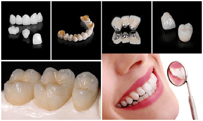 bọc răng sứ có mấy loại