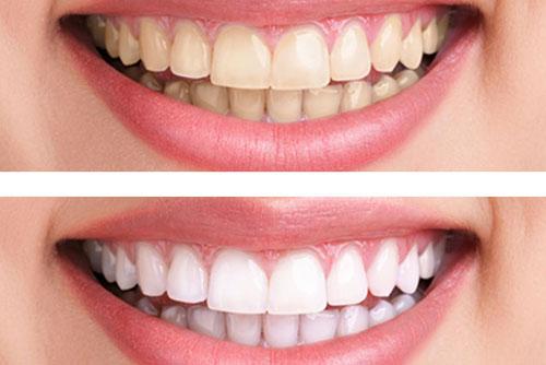 bọc răng sứ bị hở có nguy hiểm gì không?