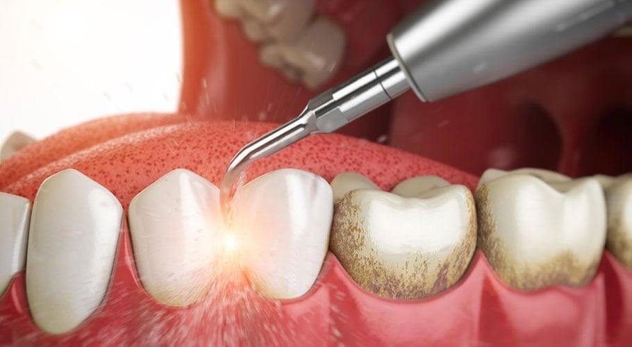 công nghệ phụ hình răng sứ hiện đại