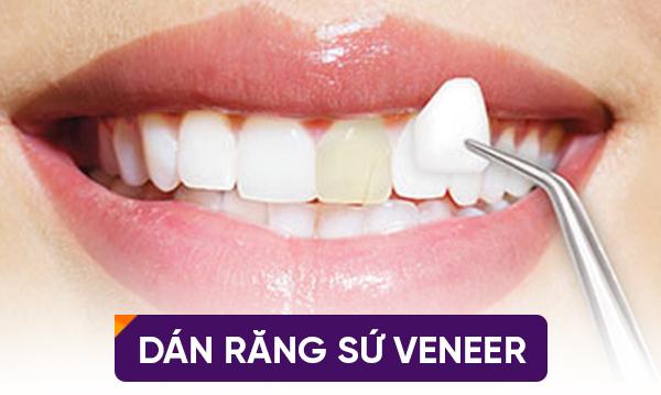 dán răng sứ có hại không