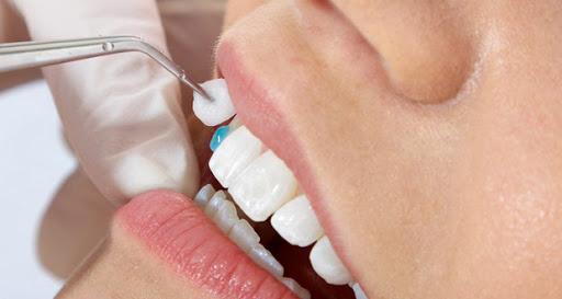 dán răng sứ giá bao nhiêu