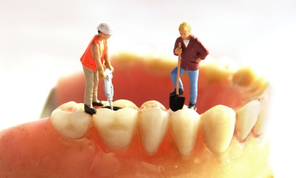 khi nào nên bọc răng sứ cho răng sâu