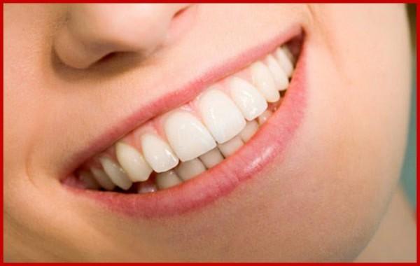 kiểu răng dán oval quý phái