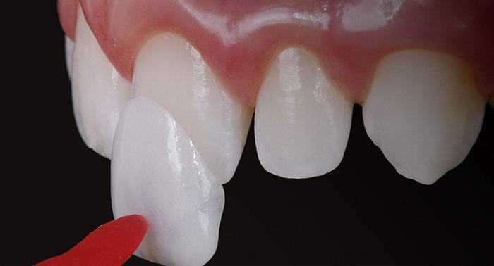 miếng dán răng sứ venner