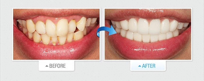 những ưu điểm của dán răng sứ