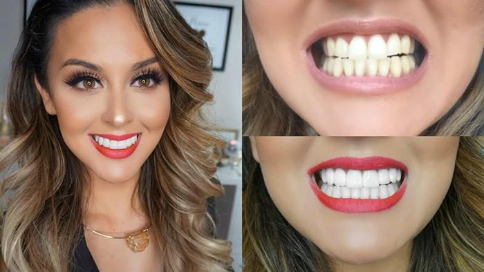 phủ răng sứ giá bao nhiêu