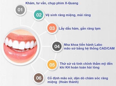 quy trình dán răng sứ thẩm mỹ