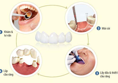 quy trình bọc răng sứ không gây đau nhức ê buốt