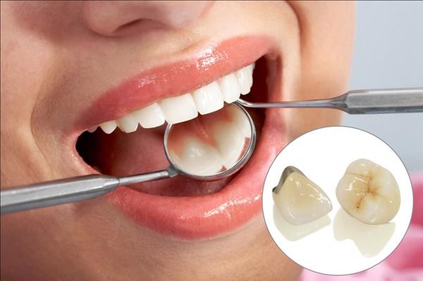 răng sứ kim loại thường