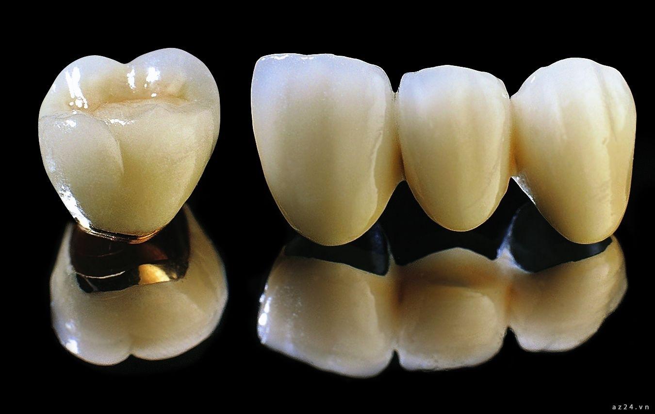răng sứ titan và răng sứ kim loại