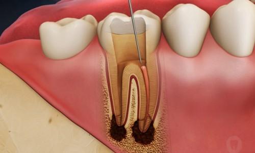 trường hợp nào cần lấy tủy trước khi bọc răng sứ