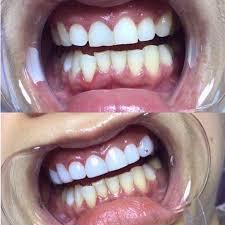 ưu điểm của phủ răng sứ